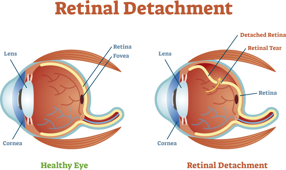 causas-desprendimiento-retina