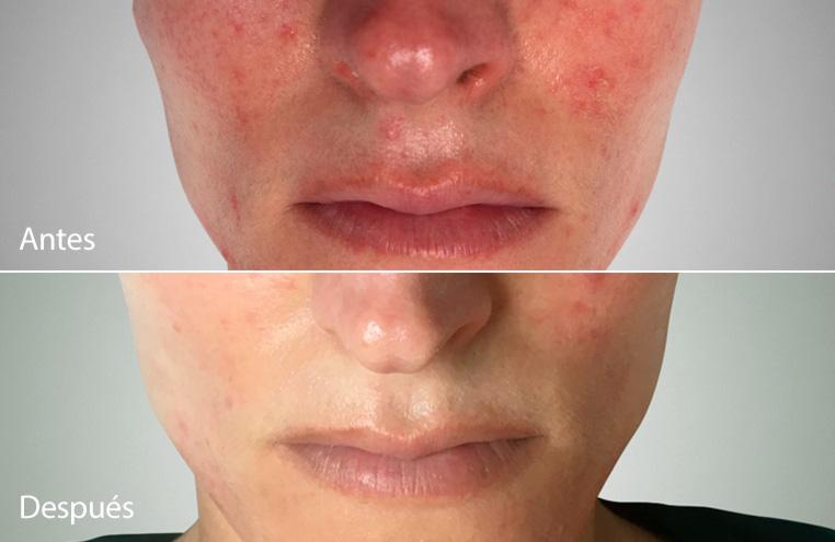 Tratamiento de la Rosácea con Kleresca: antes y después