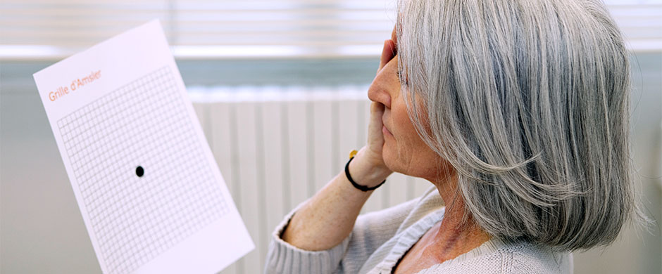 degeneracion-macular-asociada-edad