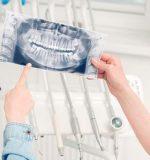El autotransplante dental: otras técnicas para sustituir dientes perdidos