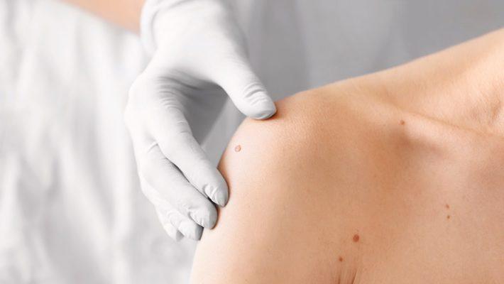 Entrevista a la Dra. Paz Cerdá: Cuidados de la piel para pacientes con cáncer